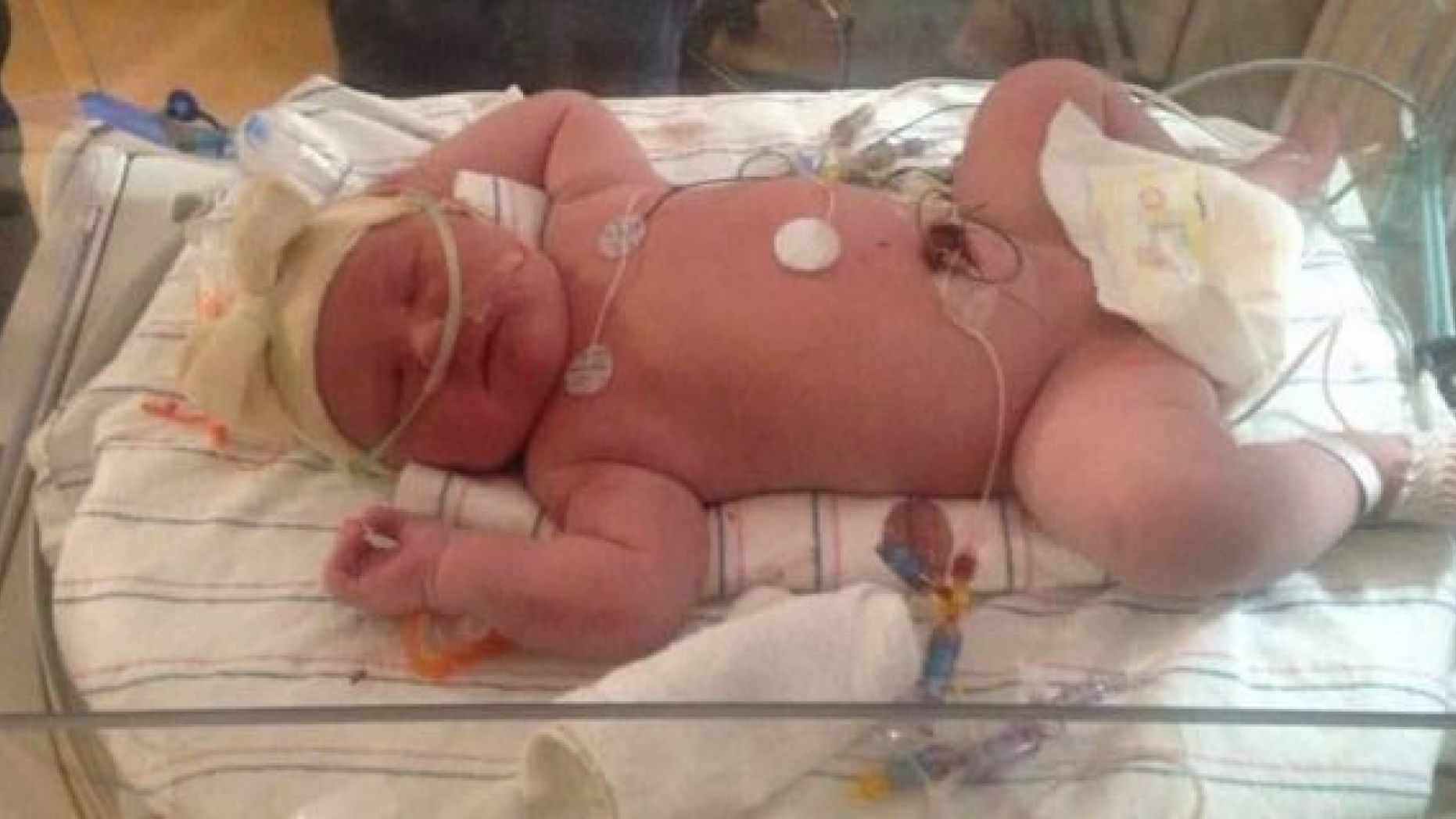 Joy Buckley gave birth to a 15-pound-15-ounce baby at an upstate New York hospital on Tuesday.