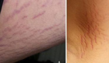 A 14-year-old boy suffering from catscratch disease was misdiagnosed withschizophrenia, according to a new case study.