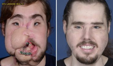 How a face transplant helped suicide survivor get his life back