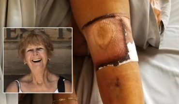 Florida woman dies after contracting flesh-eating bacteria infection at beach, family says