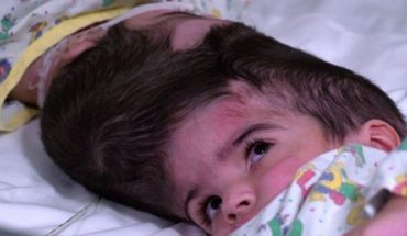 The twins, who were born in Jan. 2017, are considered craniopagus, meaning they are joined at the head.
