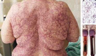 Cold weather causes New York woman to develop spidery, purple rash all over body