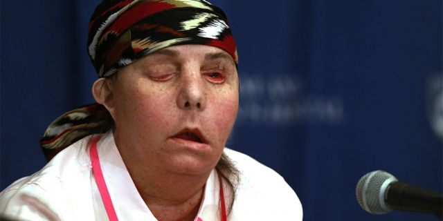 Carmen Blandin Tarleton, of Thetford, Vermont, speaking with reporters at Brigham and Women's Hospital in Boston in 2013. (AP Photo/Charles Krupa, File)