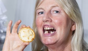 Angela McGill lost two of her front teeth when eating a mince pie.