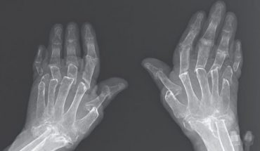 An X-ray of the woman
