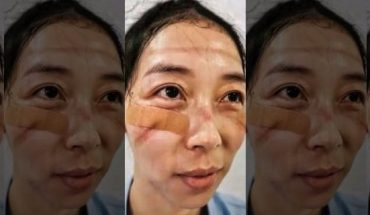 A nurse shared a photo of the marks left on her face by safety goggles after working long hours to treat coronavirus patients.