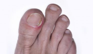 Is your toenail infected? How to spot the signs